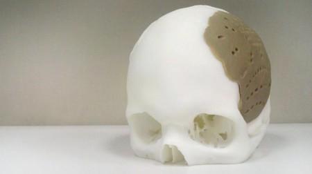 アメリカで3Dプリンタ製の頭蓋骨片を使用した手術が行われる