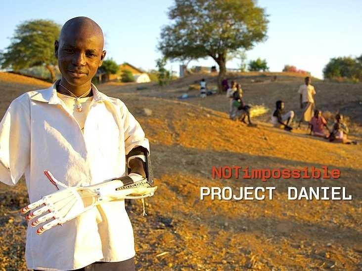 3Dプリンタを使ってスーダンの障害者に安価な義手をプレゼント 非営利団体「Not Impossible」の活動1